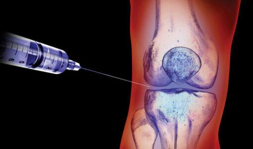Needle injecting gel into xray of Knee