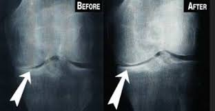 louisville stem cell for knees before and after