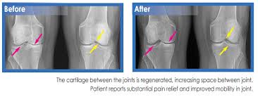 Knees before and after Stem Cell treatment