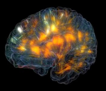 Disconnected Brain without Brain Injury