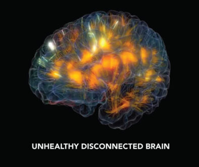 Unhealthy brain with highlighted parts