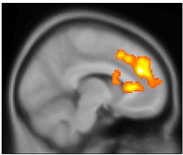 Ketamine boosts bipolar patients' brain activity