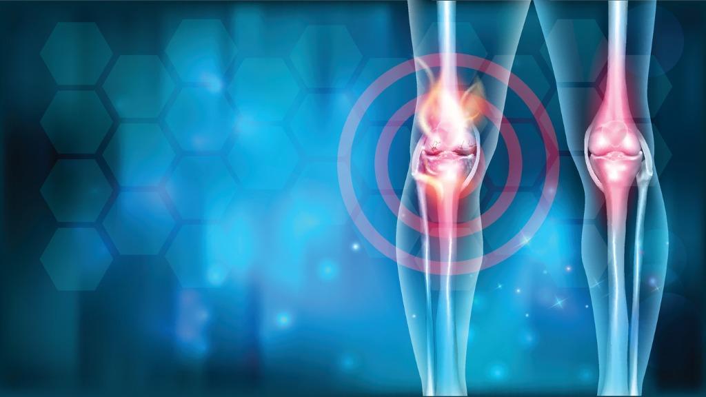 Knee-pain-relief