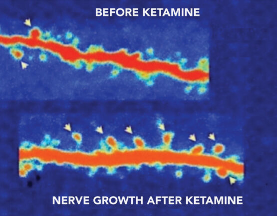Nerve growth before and after Ketamine Treatment