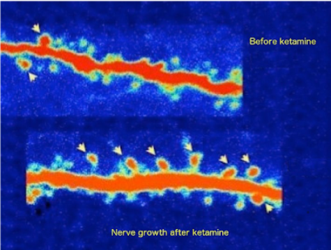 Pet scan nerve growth before and after Ketamine
