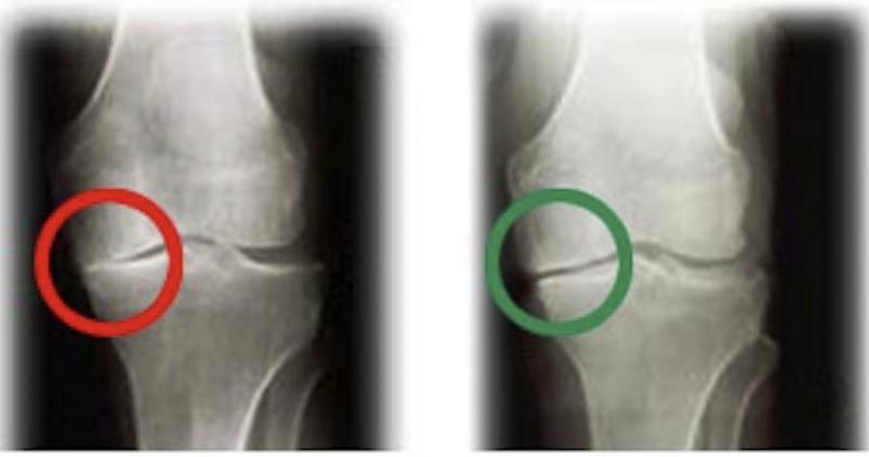 Xray of knee with osteoarthritis reversed