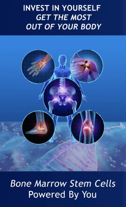 BMA stem cells