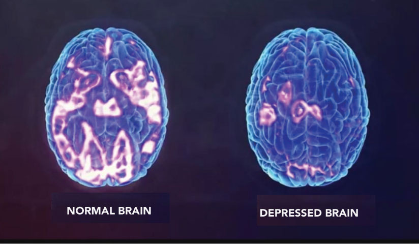Contrast of normal brain with highlighted parts and depressed brain with very little highlighted parts
